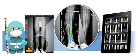Rubin Inst Adv Orthopedics